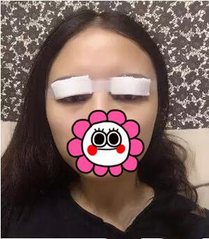我去做双眼皮术的一个月后