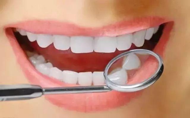 牙齿矫正以后没多久竟然还反弹的原因你知道几个?