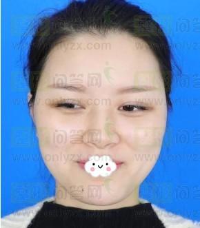 记录我的硅胶隆鼻后的变化