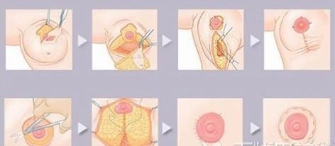 过度发育的胸部我们可以用巨乳缩小术来改变