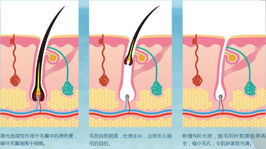 杭州脱毛整形医院医生的价格风格问答汇总