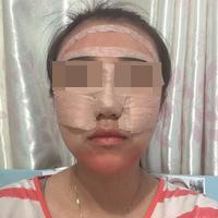 脂肪填充后不止面部轮廓好看皮肤也变得细腻了好多