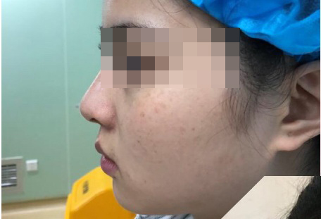 肋骨隆鼻打造精致小翘鼻