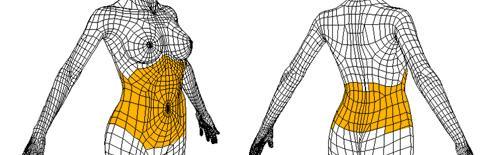 腹壁成形术简介