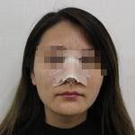 隆鼻术后五官协调立体颜值直线上升