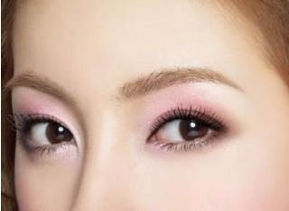 什么是开眼角术?打造诱人的桃花眼型