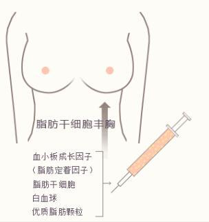 两种隆胸方法