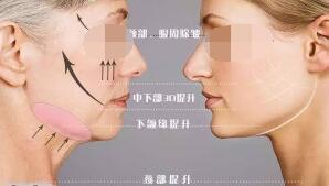 张岚医生怎么样?将人体美学与注射技法相互结合